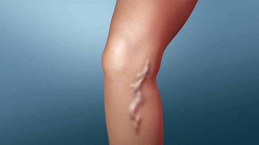 Varicose Vein Treatment in Nashik